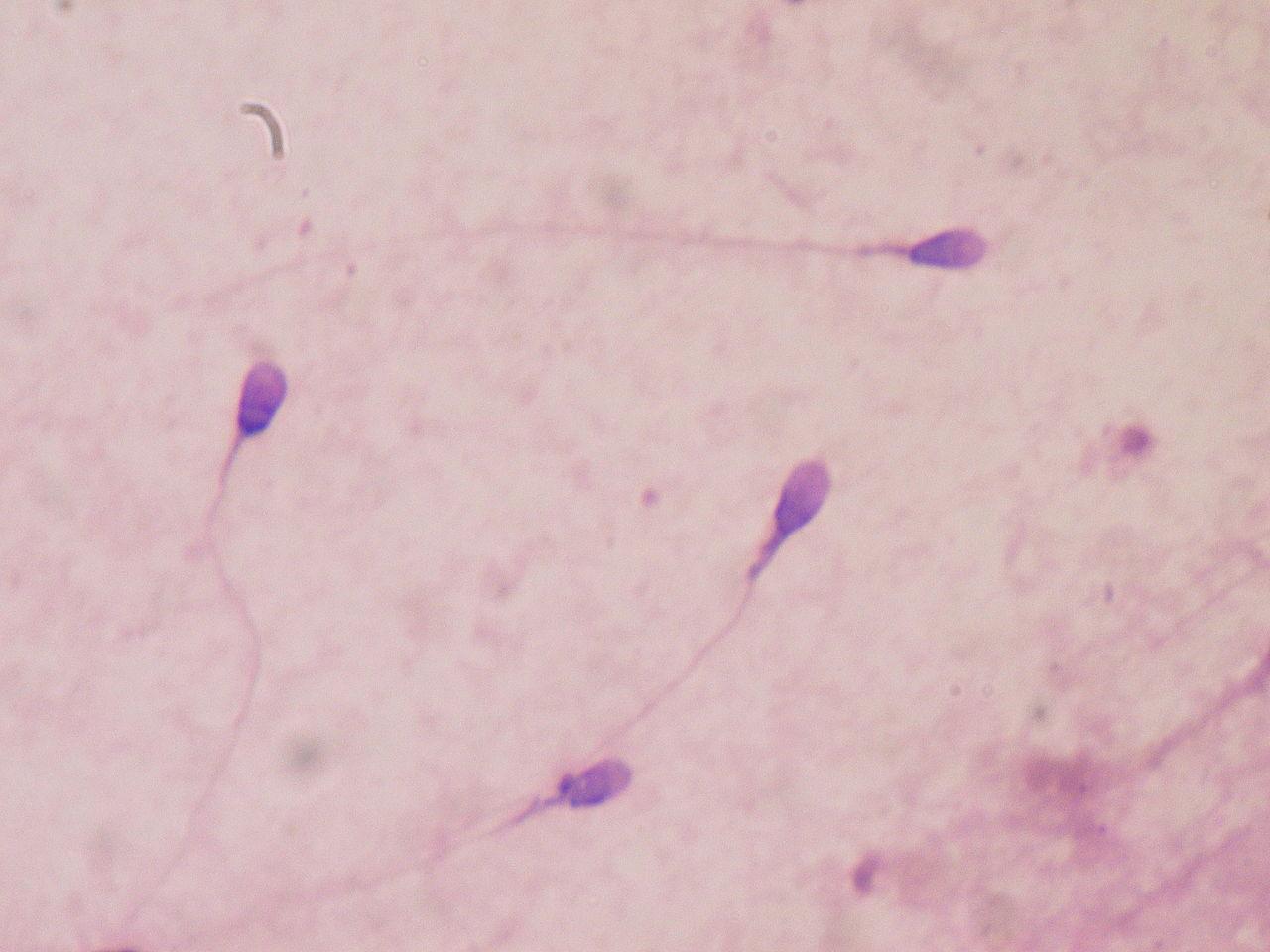 Sperme au microscope